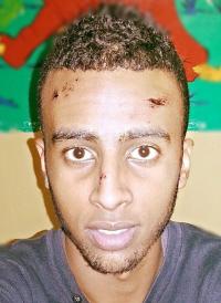 Odai El Fadil, liep afgelopen vrijdag een gebroken neus en een lichte hersenschudding op in Den Haag toen zes agenten hem mishandelden nadat ze hem ten onrechte ergens van verdachten.